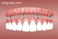 Benefits of Dental Implants Surgery