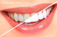 Benefits of Teeth Whitening Adelaide