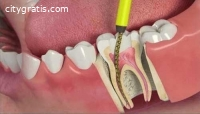 Save Your Tooth with RootCanalTreatment