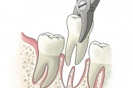 Why You May Need a Tooth Extraction?