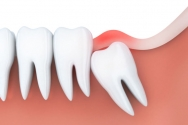 Wisdom Tooth Extraction | Tooth Extracti