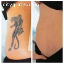 """""""Get Rid Of Unwanted Tattoos+27729833601"""