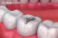 Affordable Dental Fillings Auckland