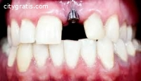 Dental Implants In Christchurch