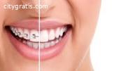 Teeth Whitening Auckland