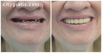 All Ceramic Crowns Dentist in NYC