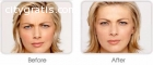 Top Rated Laser Treatment Rockville